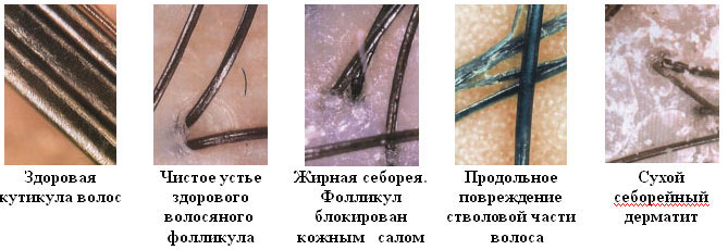 Восстановление волосяных фолликул
