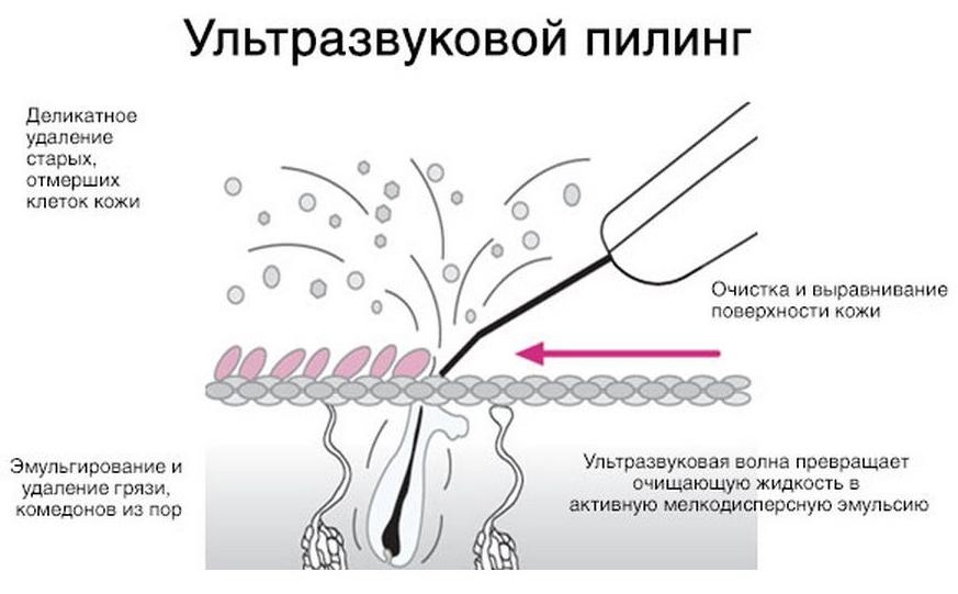 Как работает ультразвуковая чистка лица