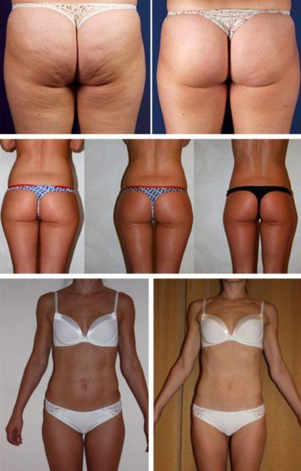 имбирное обертывание для похудения отзывы и результаты